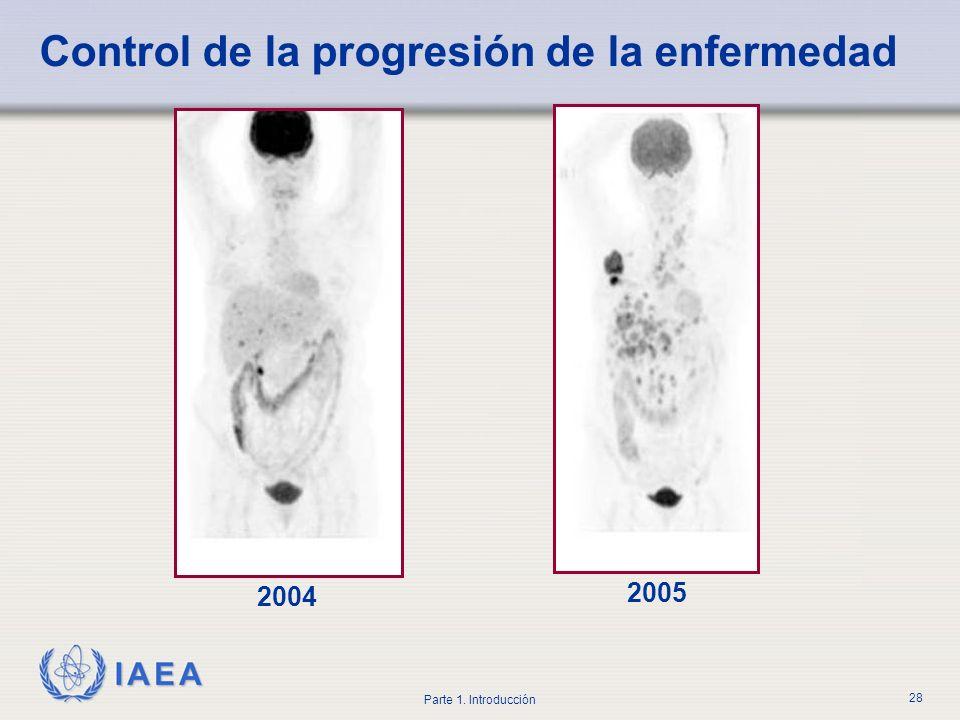 Control de la progresión de la enfermedad