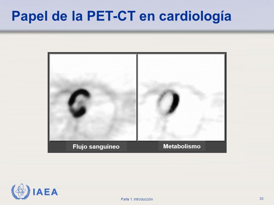 Papel de la PET-CT en cardiología