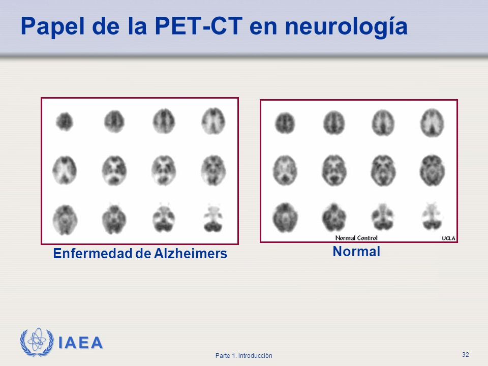 Papel de la PET-CT en neurología