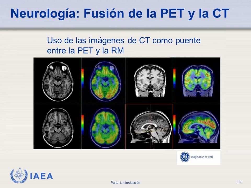 Neurología: Fusión de la PET y la CT