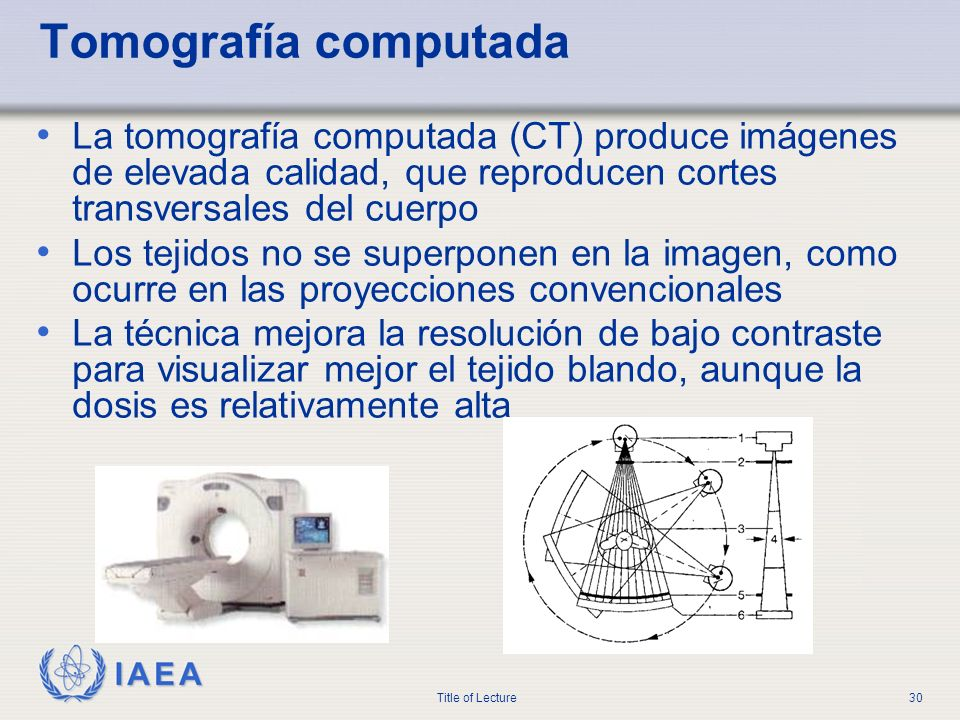 Tomografía computada La tomografía computada (CT) produce imágenes de elevada calidad, que reproducen cortes transversales del cuerpo.