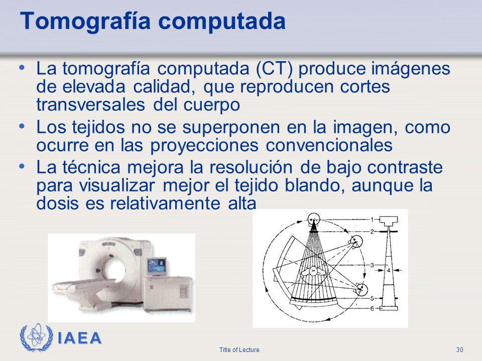 Tomografía computadaLa tomografía computada (CT) produce imágenes de elevada calidad, que reproducen cortes transversales del cuerpo.