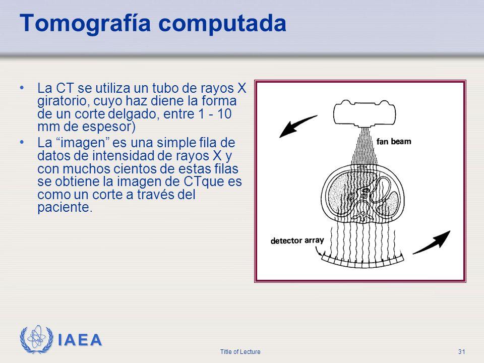Tomografía computada La CT se utiliza un tubo de rayos X giratorio, cuyo haz diene la forma de un corte delgado, entre 1 - 10 mm de espesor)
