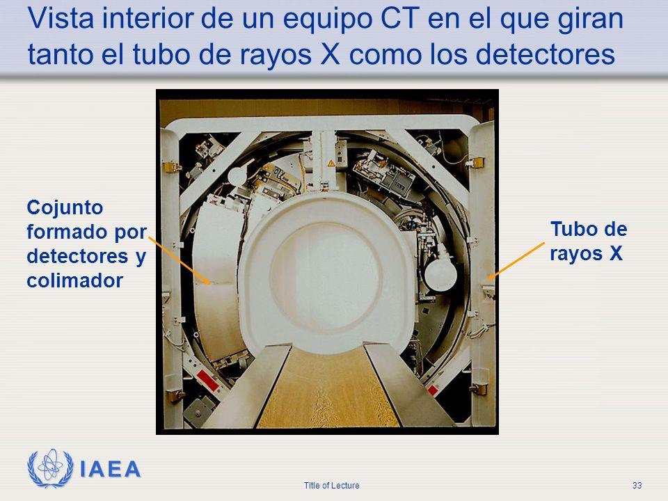 Vista interior de un equipo CT en el que giran tanto el tubo de rayos X como los detectores