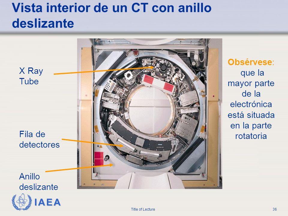 Vista interior de un CT con anillo deslizante