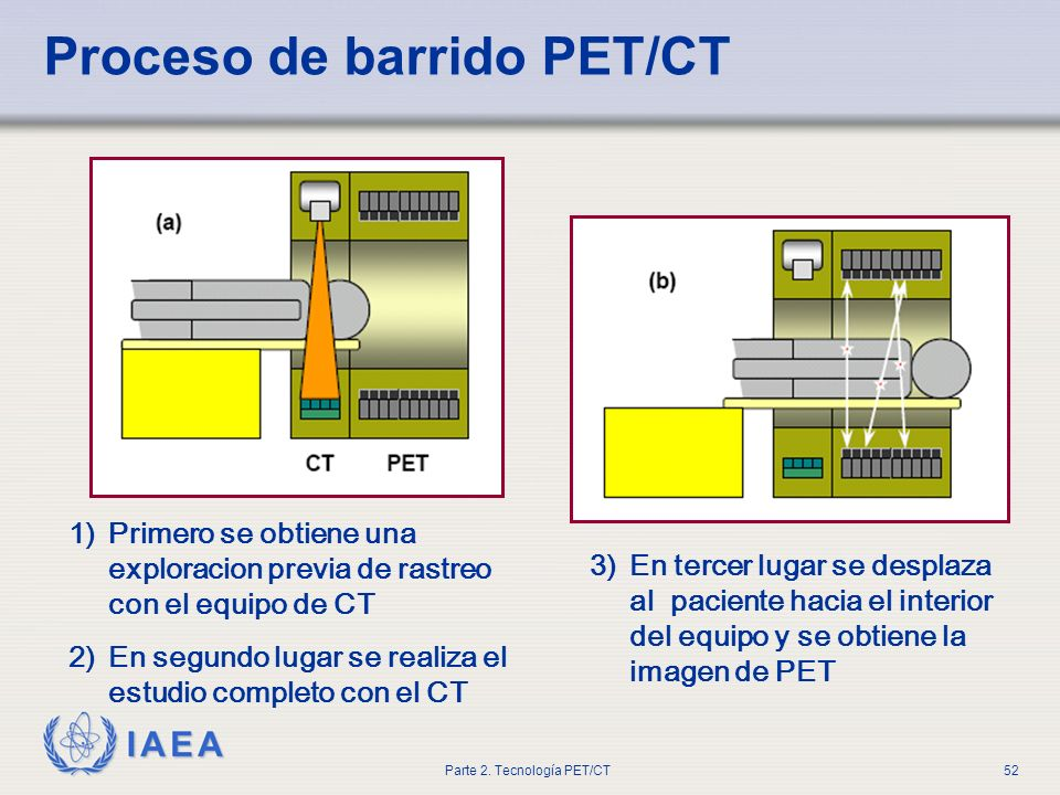 Proceso de barrido PET/CT