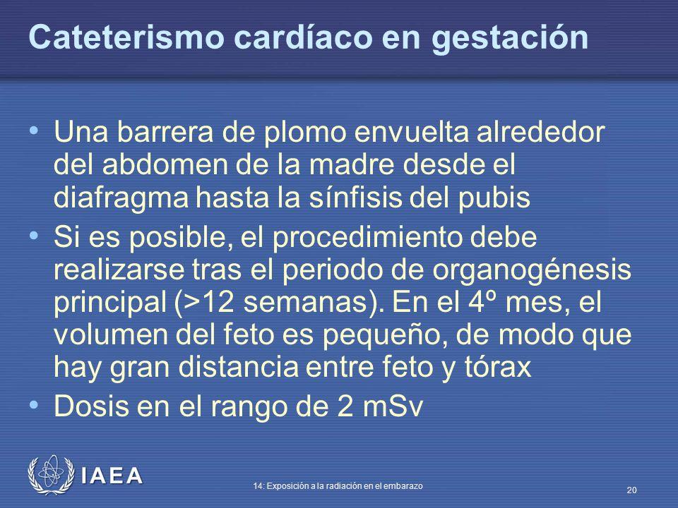 Cateterismo cardíaco en gestación