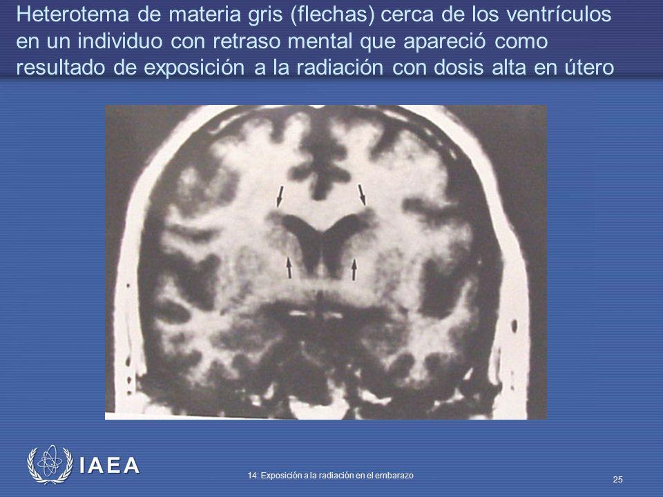 Heterotema de materia gris (flechas) cerca de los ventrículos en un individuo con retraso mental que apareció como resultado de exposición a la radiación con dosis alta en útero