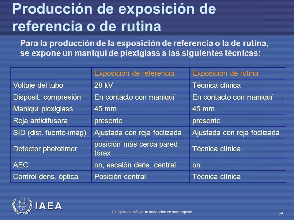 Producción de exposición de referencia o de rutina