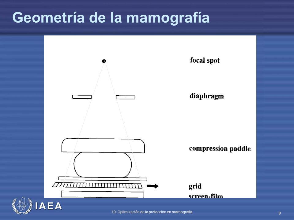 Geometría de la mamografía