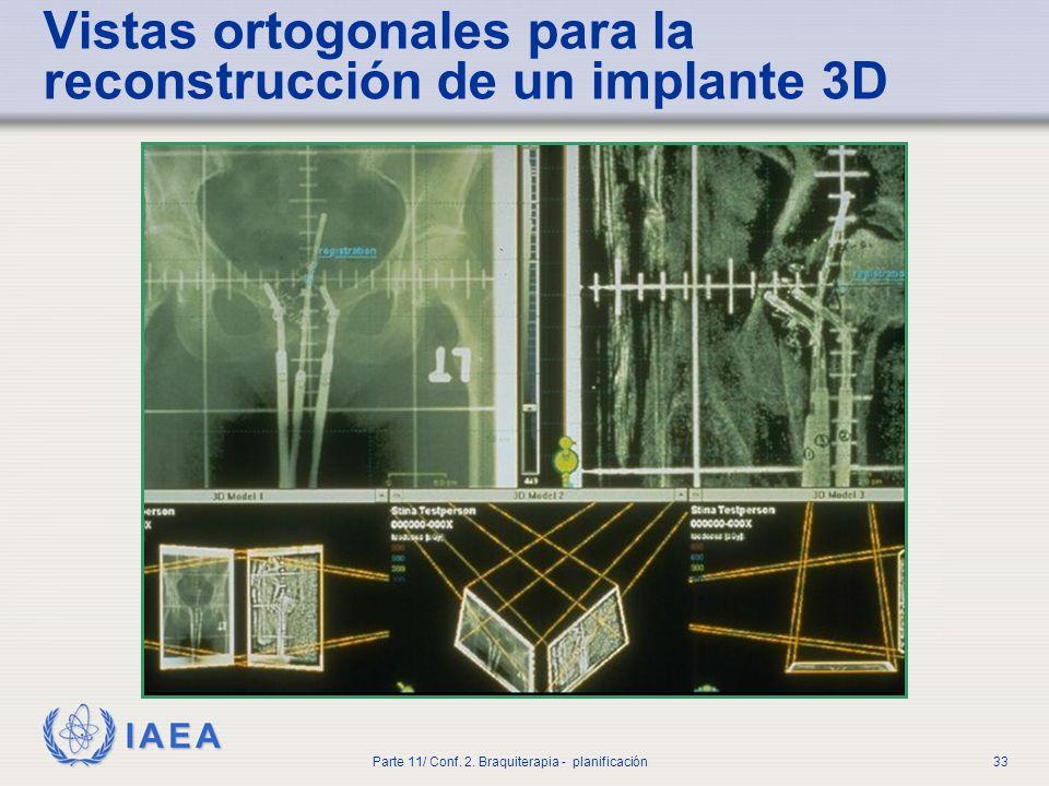 Vistas ortogonales para la reconstrucción de un implante 3D