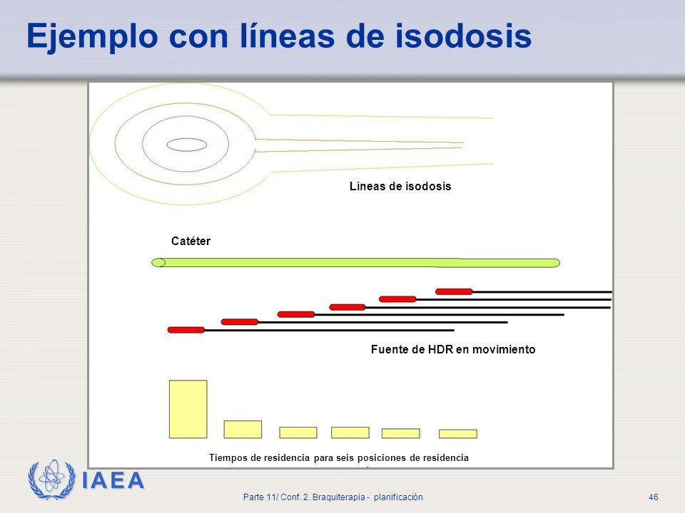 Ejemplo con líneas de isodosis