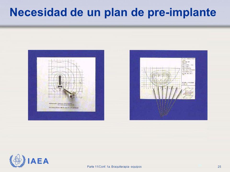 Necesidad de un plan de pre-implante