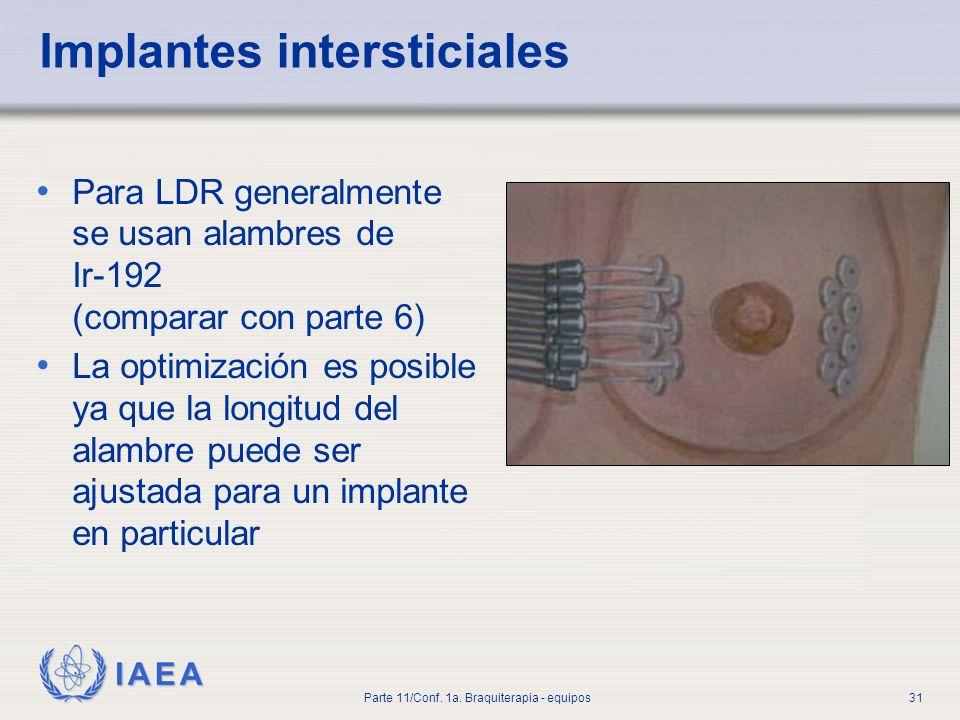 Implantes intersticiales
