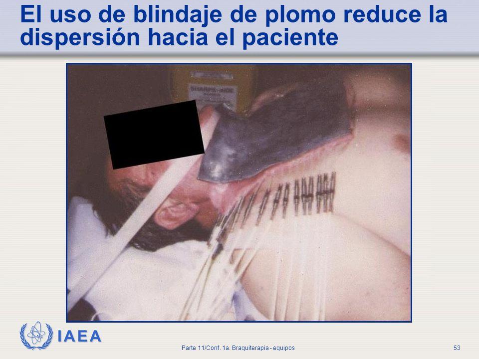 El uso de blindaje de plomo reduce la dispersión hacia el paciente