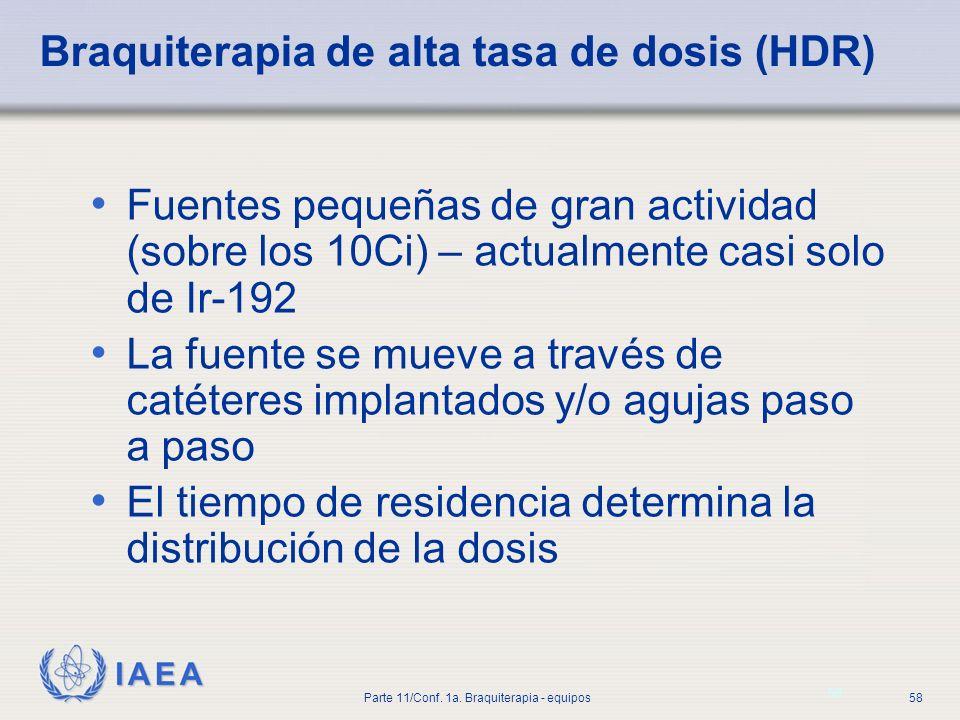 Braquiterapia de alta tasa de dosis (HDR)