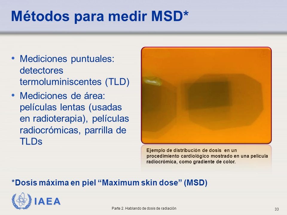 Métodos para medir MSD*