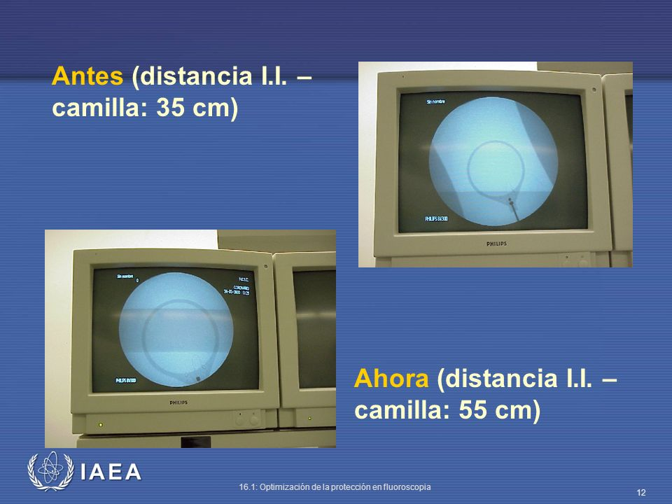 Antes (distancia I.I. – camilla: 35 cm)