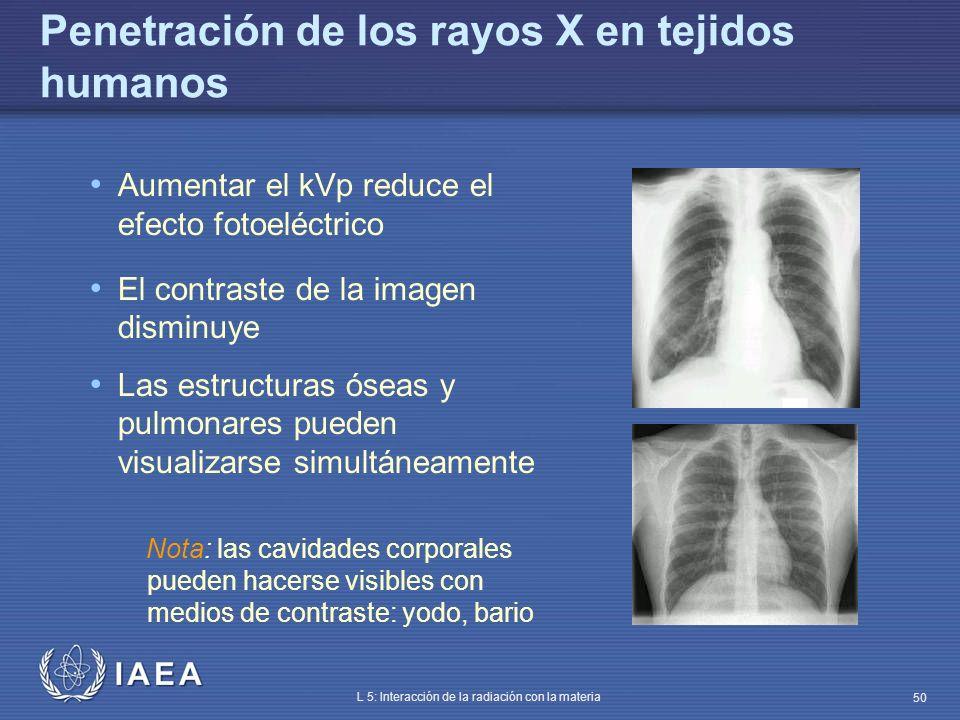 Penetración de los rayos X en tejidos humanos
