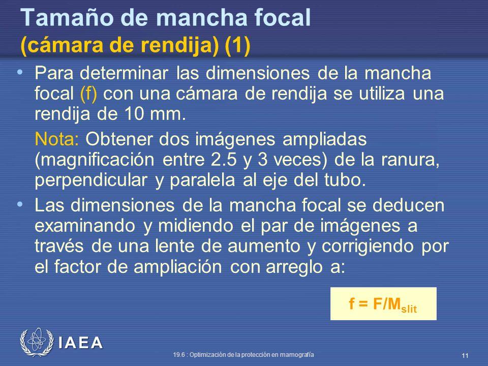 Tamaño de mancha focal (cámara de rendija) (1)
