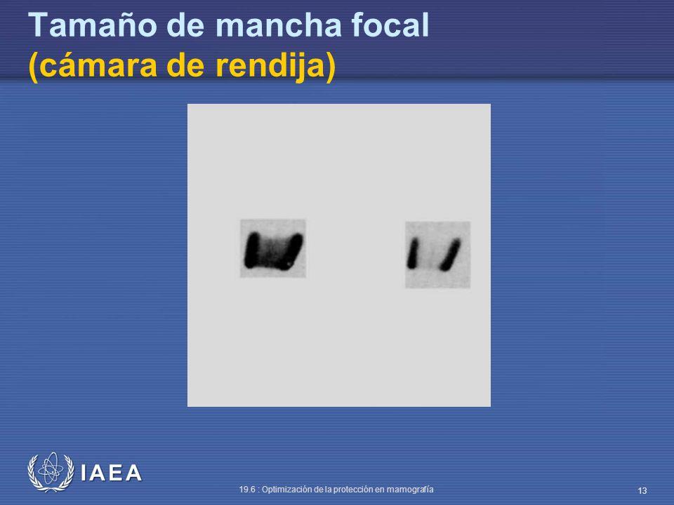 Tamaño de mancha focal (cámara de rendija)