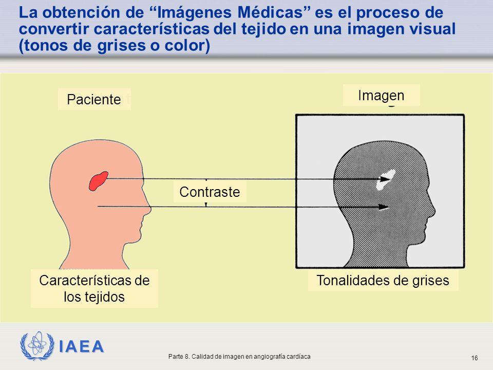La obtención de Imágenes Médicas es el proceso de convertir características del tejido en una imagen visual (tonos de grises o color)