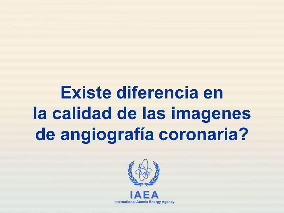 Existe diferencia en la calidad de las imagenes de angiografía coronaria