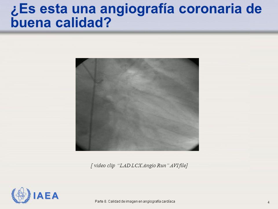 ¿Es esta una angiografía coronaria de buena calidad
