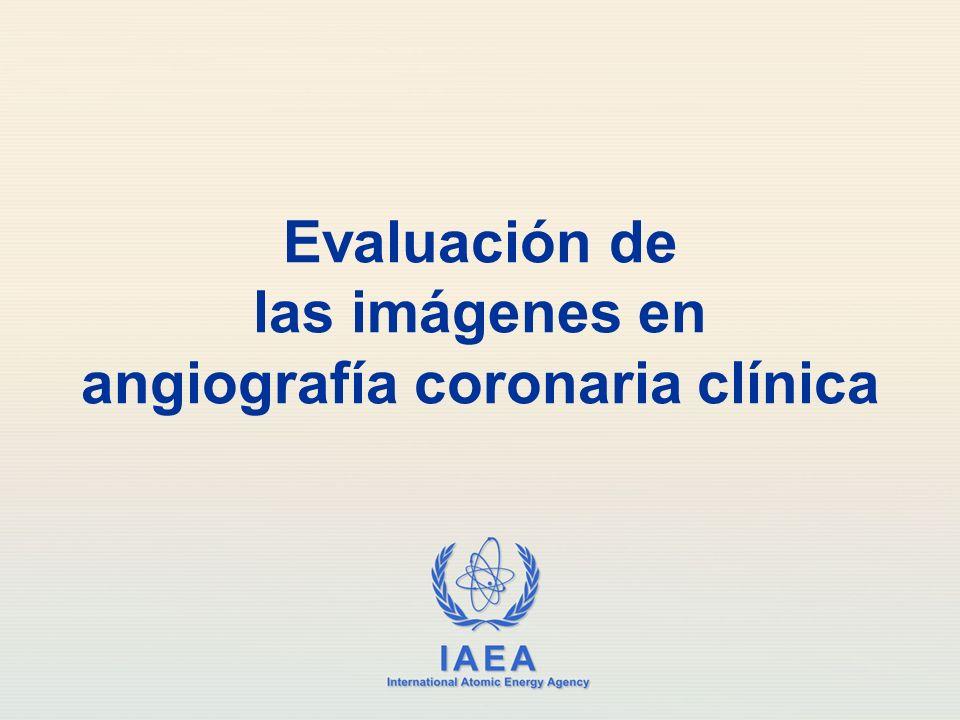 Evaluación de las imágenes en angiografía coronaria clínica