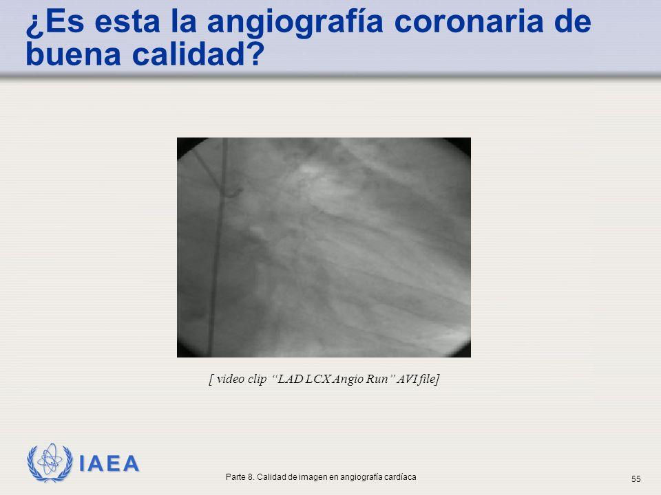 ¿Es esta la angiografía coronaria de buena calidad