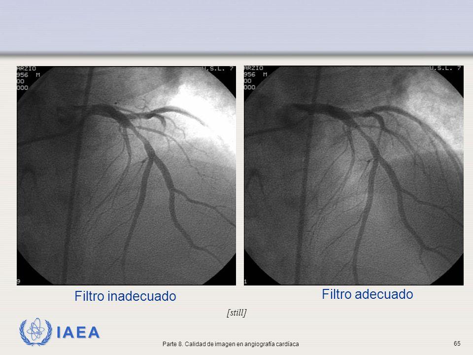 Parte 8. Calidad de imagen en angiografía cardíaca