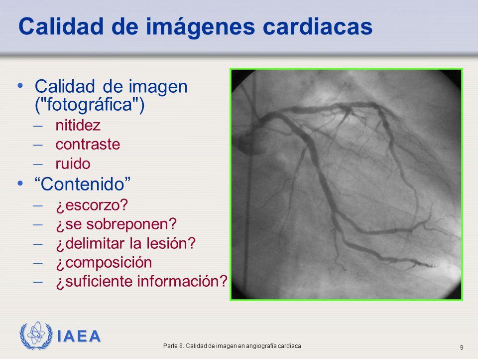 Calidad de imágenes cardiacas