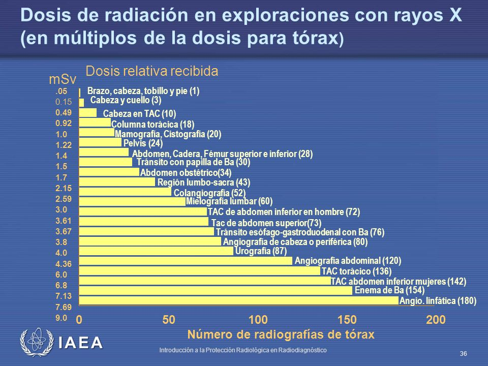 Dosis de radiación en exploraciones con rayos X (en múltiplos de la dosis para tórax)