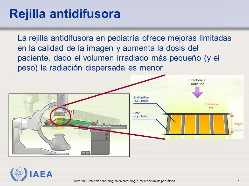 Rejilla antidifusora