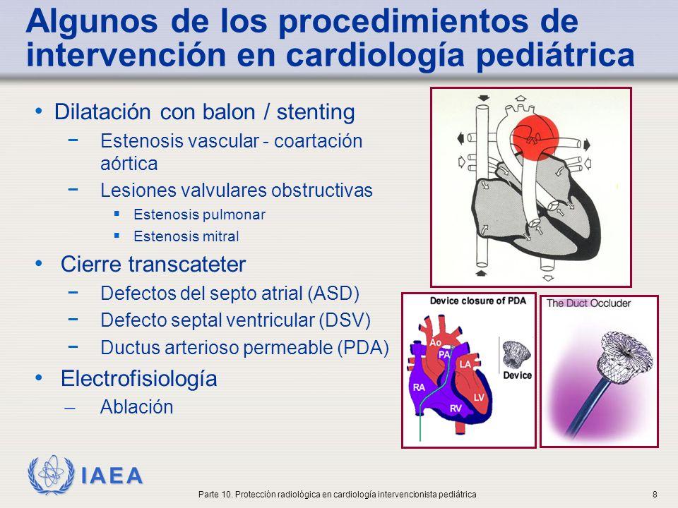 Algunos de los procedimientos de intervención en cardiología pediátrica
