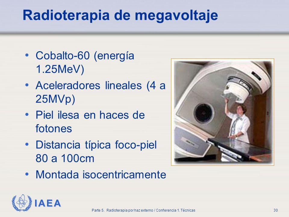 Radioterapia de megavoltaje