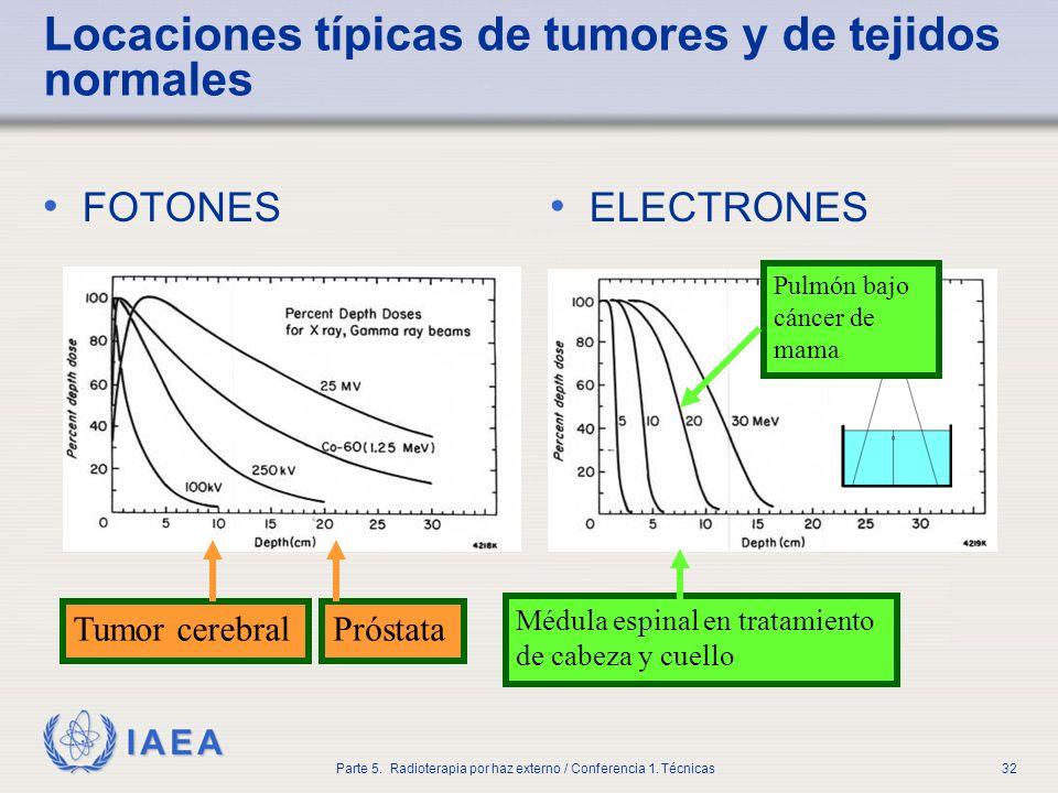 Locaciones típicas de tumores y de tejidos normales