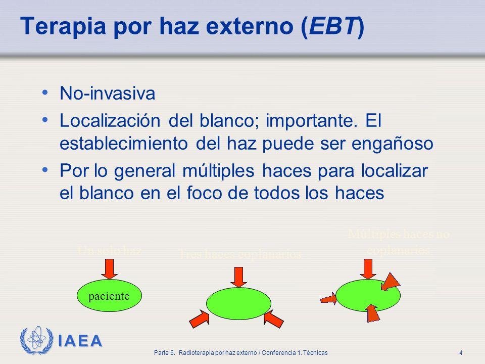 Terapia por haz externo (EBT)