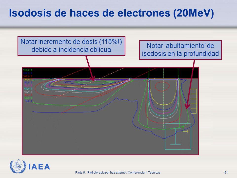 Isodosis de haces de electrones (20MeV)