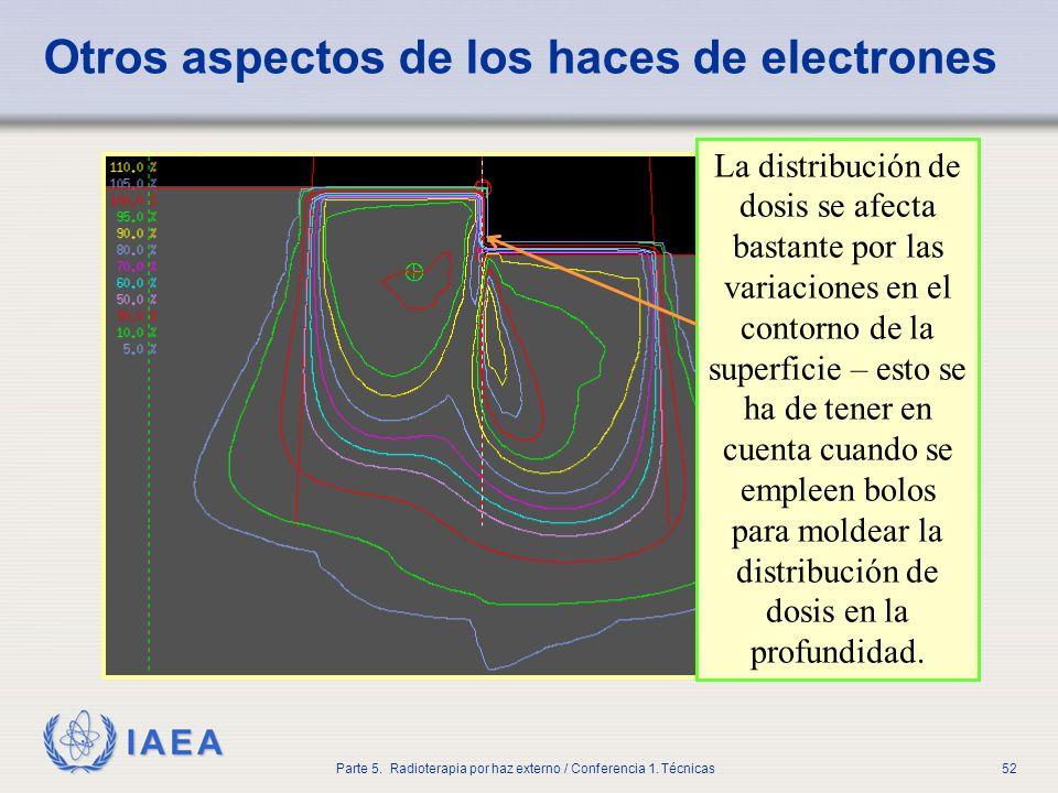 Otros aspectos de los haces de electrones