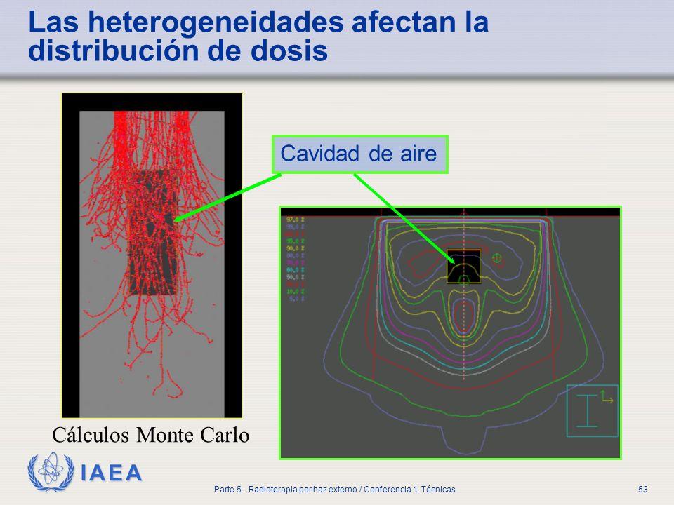 Las heterogeneidades afectan la distribución de dosis