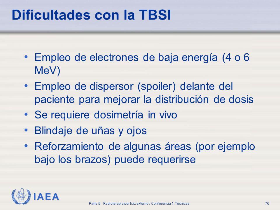 Dificultades con la TBSI