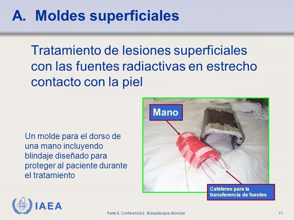 A. Moldes superficiales