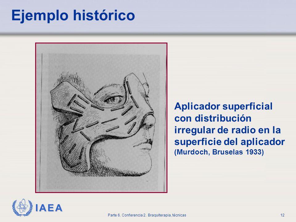 Ejemplo históricoAplicador superficial con distribución irregular de radio en la superficie del aplicador.