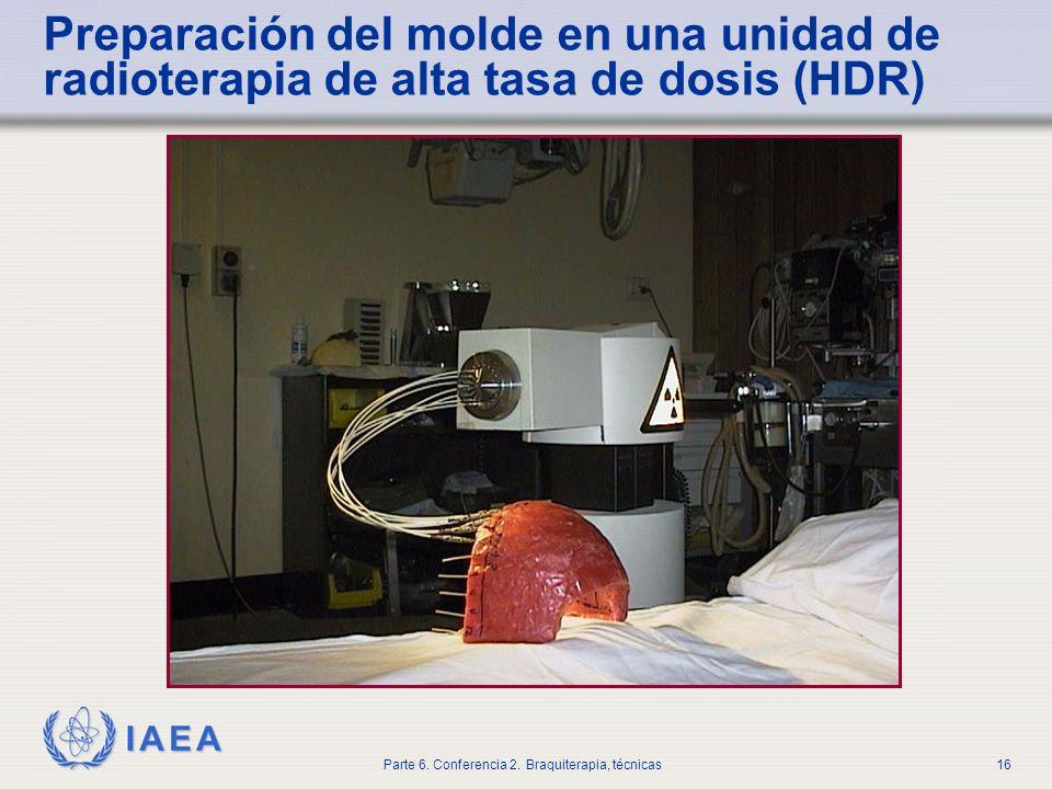 Preparación del molde en una unidad de radioterapia de alta tasa de dosis (HDR)