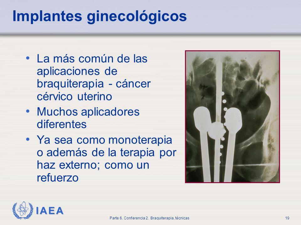 Implantes ginecológicos