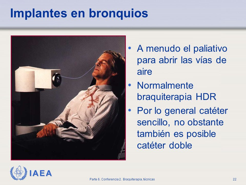 Implantes en bronquios