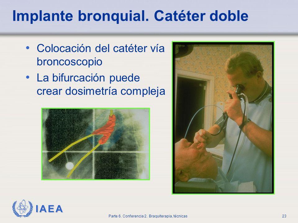 Implante bronquial. Catéter doble