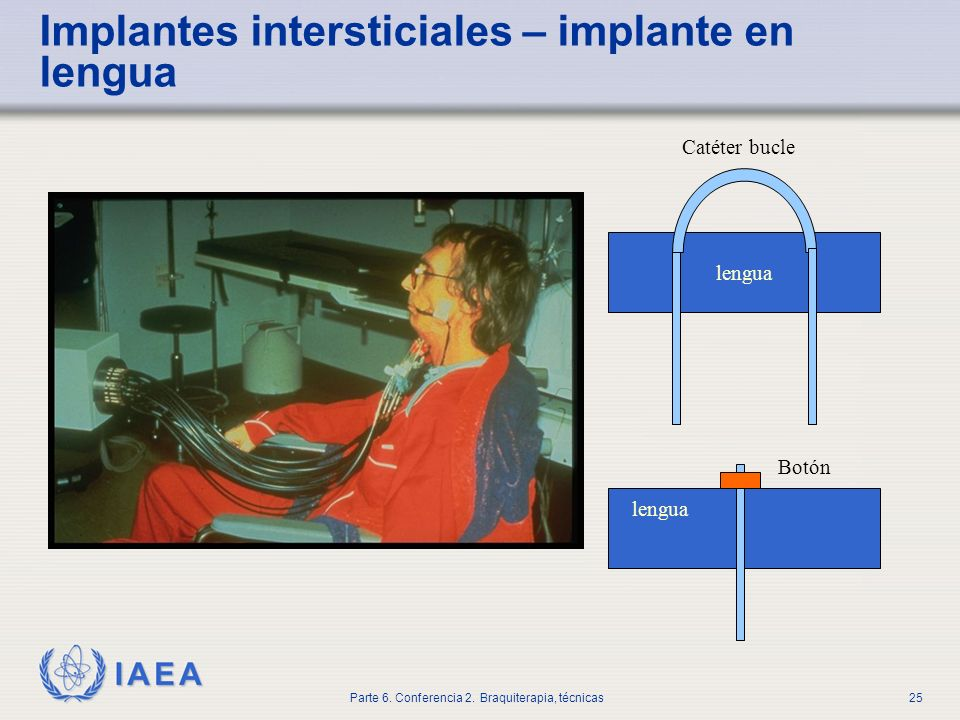 Implantes intersticiales – implante en lengua