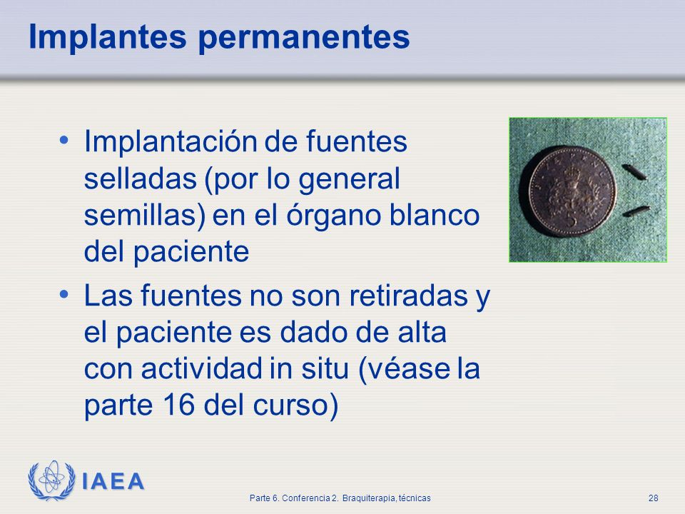 Implantes permanentes
